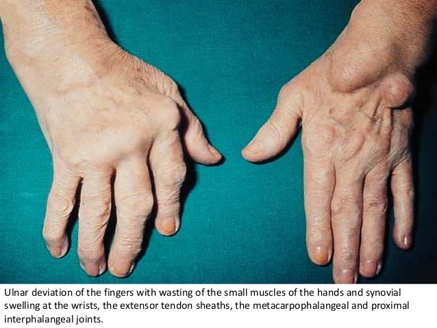 Ulnar deviation of the fingers with wasting of the small muscles of the hands and synovial swelling at the wrists, the ext...