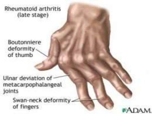 • Dorsal subluxation of the MTP joints - 'cock- up' toe deformities leading to secondary adventitious bursae and callositi...