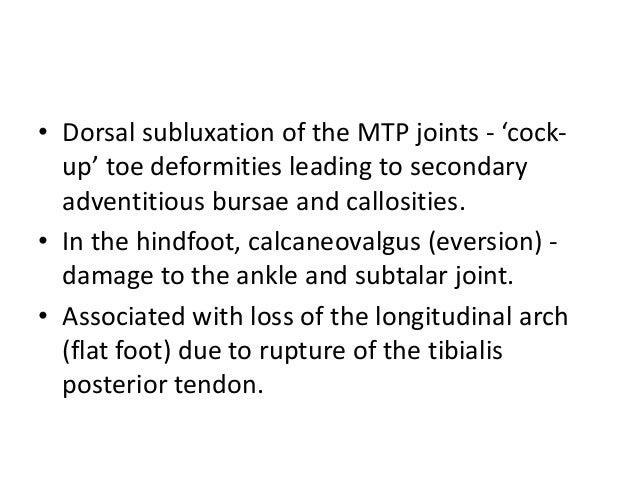 Cock Up Toe Deformity