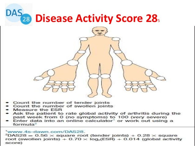 • DAS28 score of higher than 5.1 is indicative of high disease activity • DAS28 below 3.2 indicates low disease activity. ...