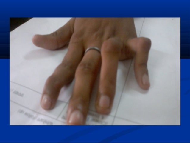 rheumatoid arthritis early detection and treatment essay Rheumatoid arthritis is an autoimmune disorder that can affect the joints and organs in the body, which usually presents with a flare up of symptoms followed by a period of remission.