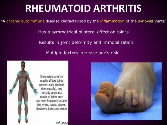 rheumatoid arthritis and its effects A chronic inflammatory condition, rheumatoid arthritis can cause stiffness, pain, swelling, warmth, and redness in joints, most commonly in the joints of the wrists, hands, and feet this autoimmune disease that affects your motion, mobility, and even quality of life is the result of your immune.