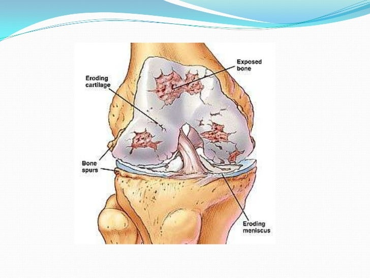 steroid injections for arthritis in knees