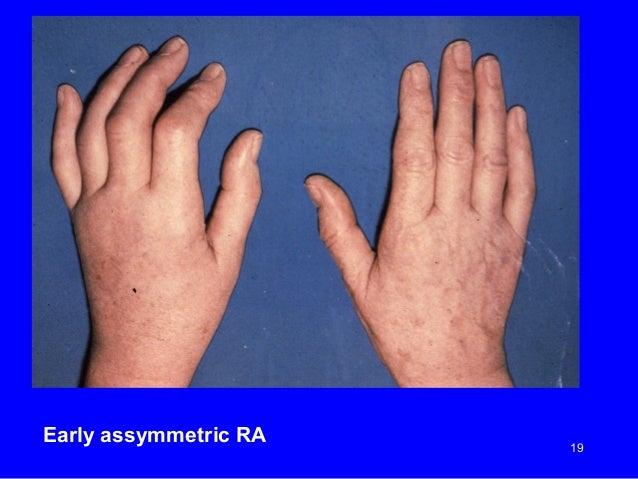 free dissertation about rheumatoid arthritis