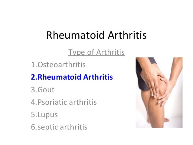 Rheumatoid Arthritis Symptoms Signs Early Symptoms