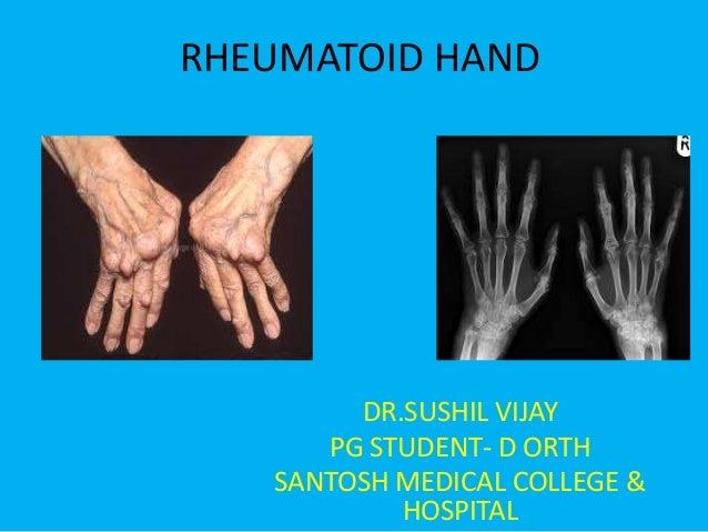 RHEUMATOID HAND        DR.SUSHIL VIJAY      PG STUDENT- D ORTH   SANTOSH MEDICAL COLLEGE &           HOSPITAL