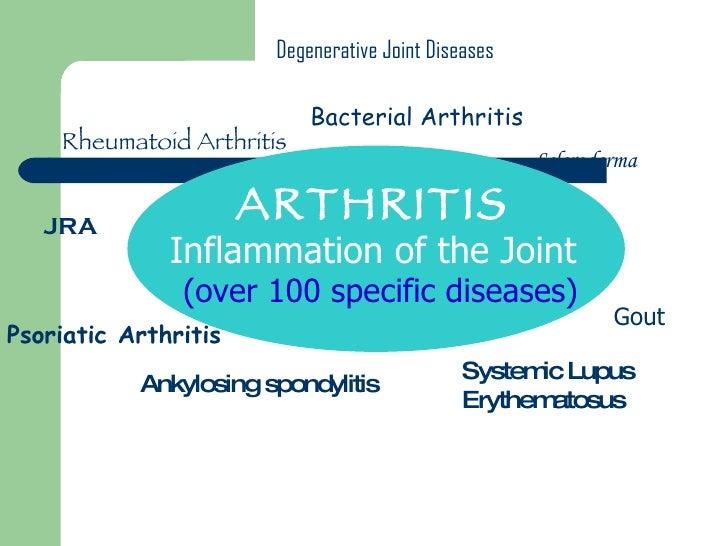 ARTHRITIS  Inflammation of the Joint (over 100 specific diseases) Rheumatoid Arthritis Gout Degenerative Joint Diseases An...