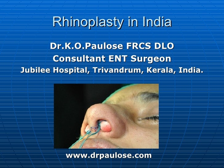 Rhinoplasty in India       Dr.K.O.Paulose FRCS DLO       Consultant ENT SurgeonJubilee Hospital, Trivandrum, Kerala, India...