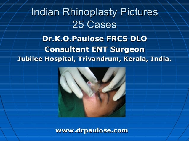 Indian Rhinoplasty Pictures           25 Cases       Dr.K.O.Paulose FRCS DLO       Consultant ENT SurgeonJubilee Hospital,...