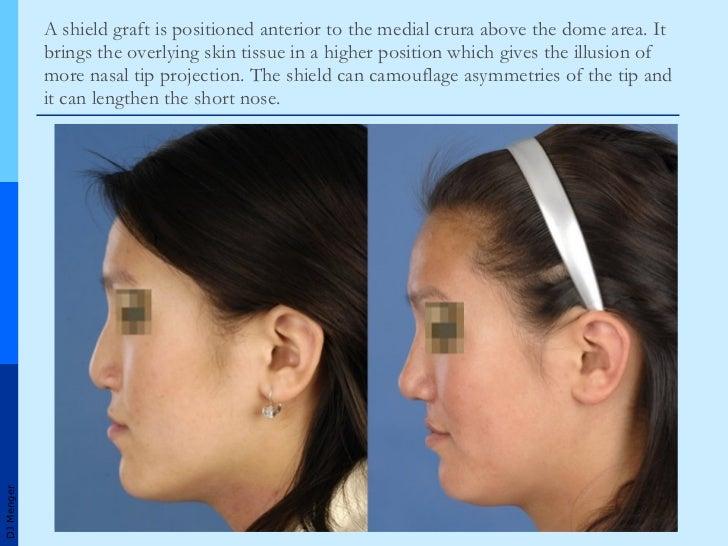 Grafts in Nasal Surgery v1
