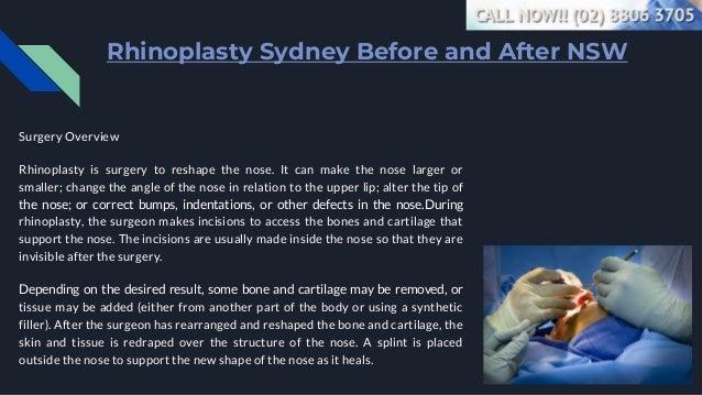 Rhinoplasty Surgeon Finder - Call Now (02) 8806 3705