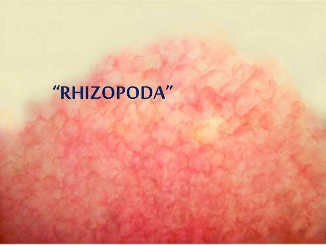 Rhizopoda merupakan salah satu kelas dari filum protozoa. Anggota Filum ini bergerak menggunakan pseudopodia (kaki semu). ...