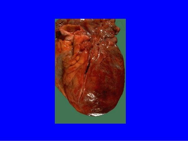 Damaged myocardium