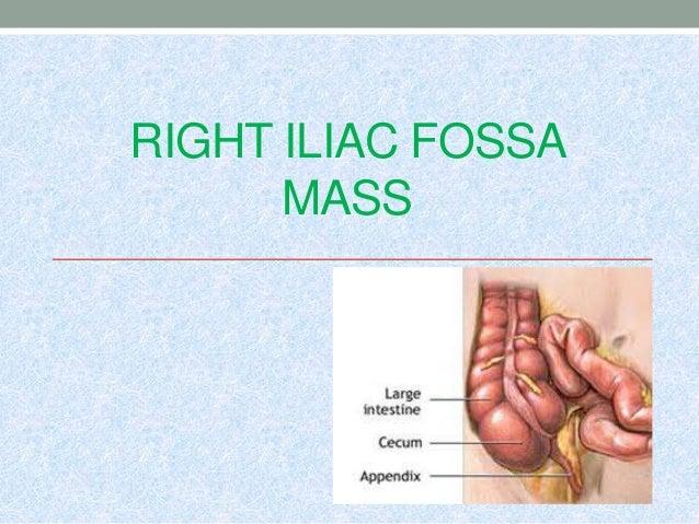 RIGHT ILIAC FOSSA MASS