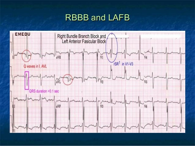 right bundle branch block essay A right bundle branch block (rbbb) is a heart block in the right bundle branch of the electrical conduction system during a right bundle branch block, the right ventricle is not directly activated by impulses travelling through the right bundle branch the left ventricle however, is still normally activated by the left bundle branch.