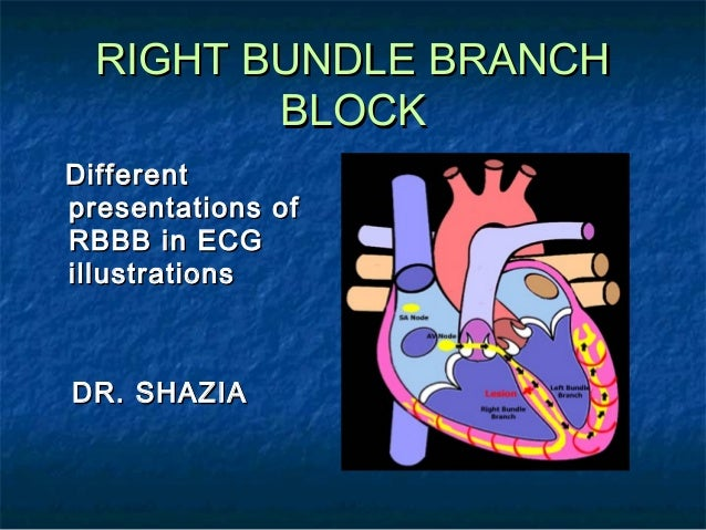 RIGHT BUNDLE BRANCH BLOCK Different presentations of RBBB in ECG illustrations  DR. SHAZIA