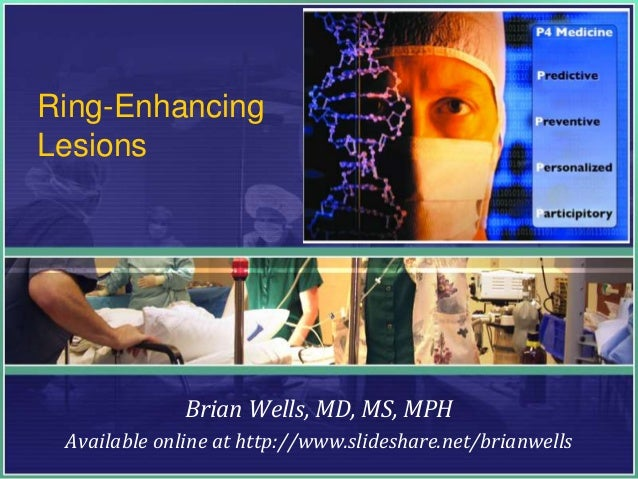 Ring-Enhancing Lesions Brian Wells, MD, MS, MPH Available online at http://www.slideshare.net/brianwells