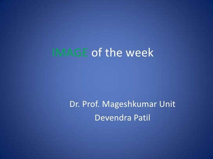 IMAGE of the week<br />Dr. Prof. Mageshkumar Unit <br />DevendraPatil<br />