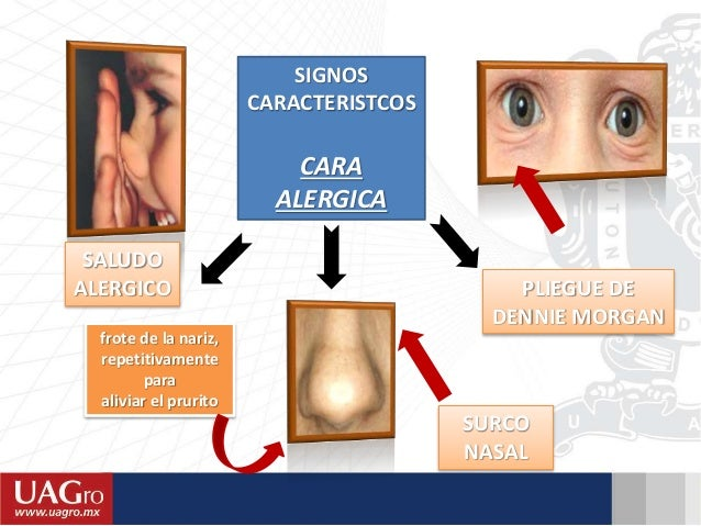 La psoriasis de las uñas de los dedos de las manos el tratamiento medicamentoso