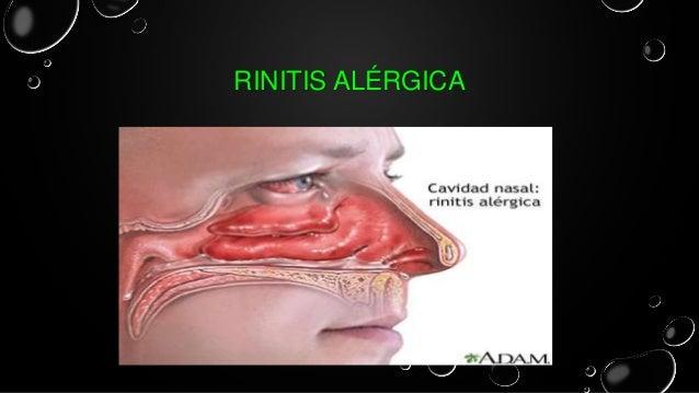 Rinitis al rgica y sinusitis - Humidificador que es ...