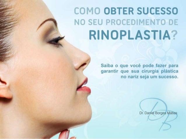 Além de melhorar a aparência do nariz a Rinoplastia é capaz de harmonizar toda a face. Por esse motivo antes de decidir re...