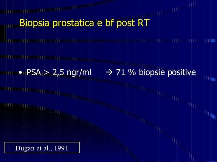 datazione con carcinoma della prostata