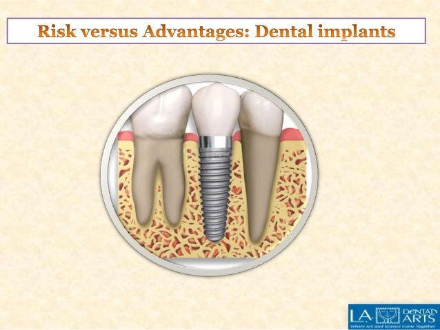 Dental implant is a useful technique for fixing missing teeth.  Though its benefits far outnumber the disadvantages, you m...