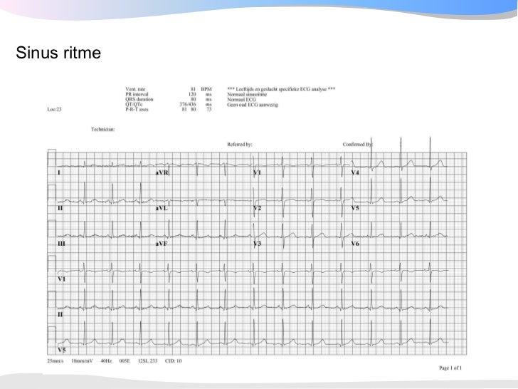 ventriculaire extrasystolen oorzaken
