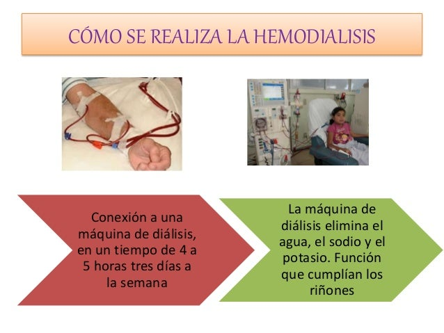 Si puede ser la psoriasis al niño en 5 meses