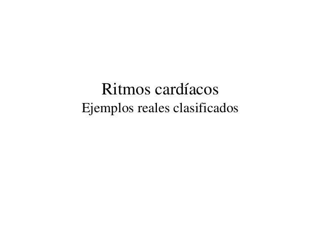 Ritmos cardíacos Ejemplos reales clasificados