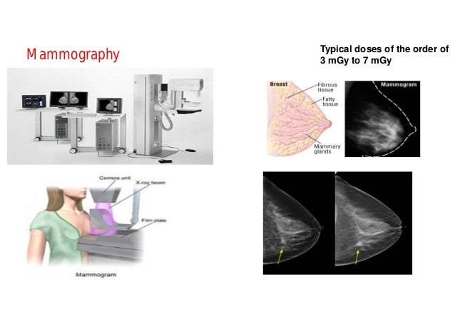 Interventional Radiology Typical Effective dose range : 10 mSv-70 mSv Typical Skin Doses of the order of 1 Gy to 20 Gy