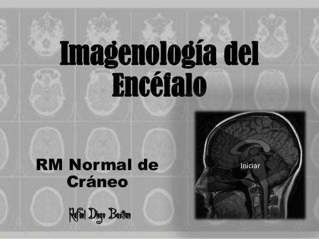 Imagenología delEncéfaloRM Normal deCráneoRafael Diego BastianIniciar