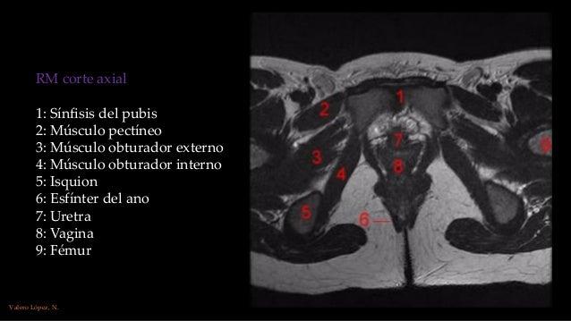 Anatomía por la imagen. Rm, histerosalpingografía. genitales mujer. …