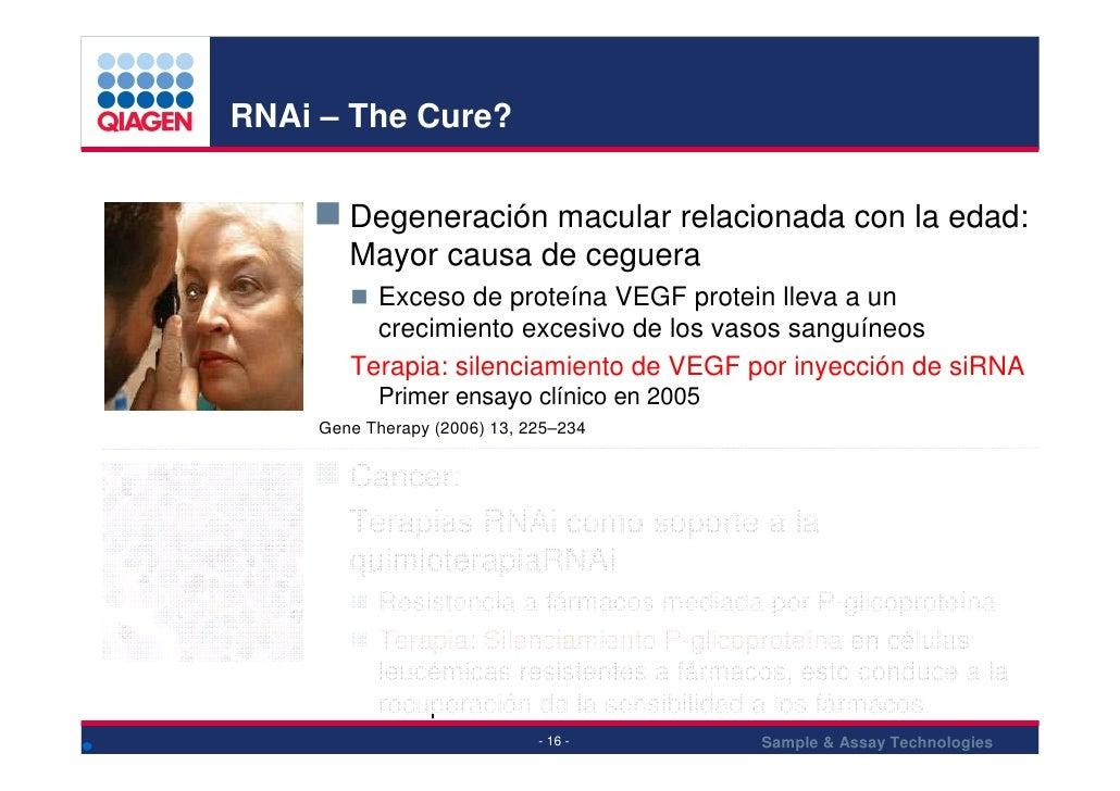 RNAi – The Cure?           Degeneración macular relacionada con la edad:         Mayor causa de ceguera           Exceso d...
