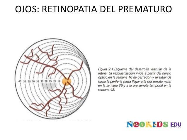 OJOS: RETINOPATIA DEL PREMATURO