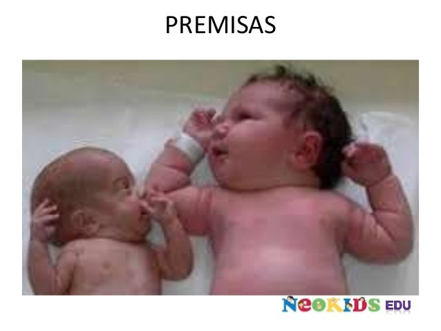 PREMISAS