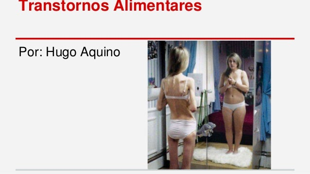 Transtornos Alimentares  Por: Hugo Aquino