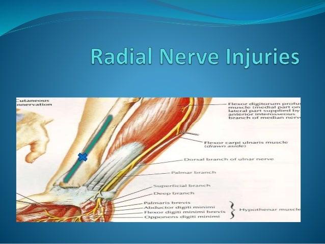 peripheral nerve injuries Slide 3