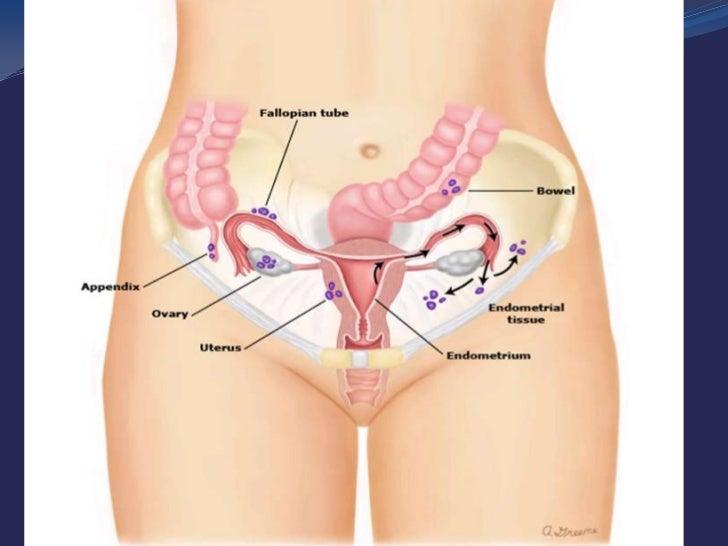 DaVinci Hysterectomy Public Lecture
