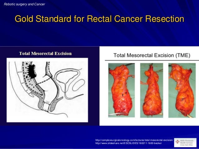 Robotic Surgery And Cancer Gastrointestinal And Thoracic