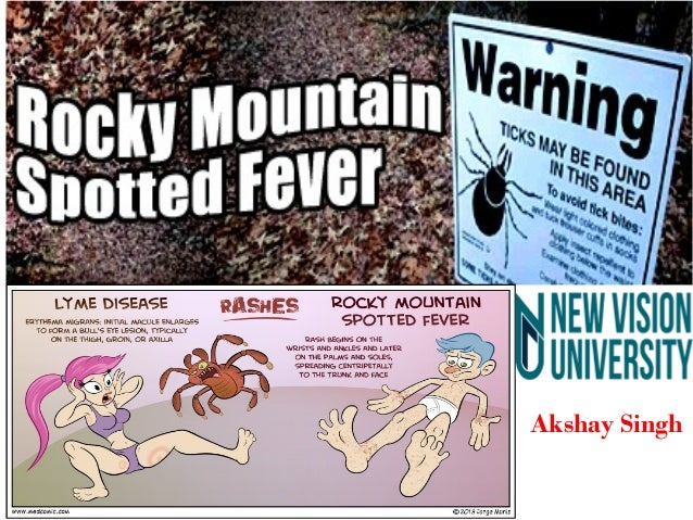 Rocky Mountain Spotted Fever Symptoms in Pictures