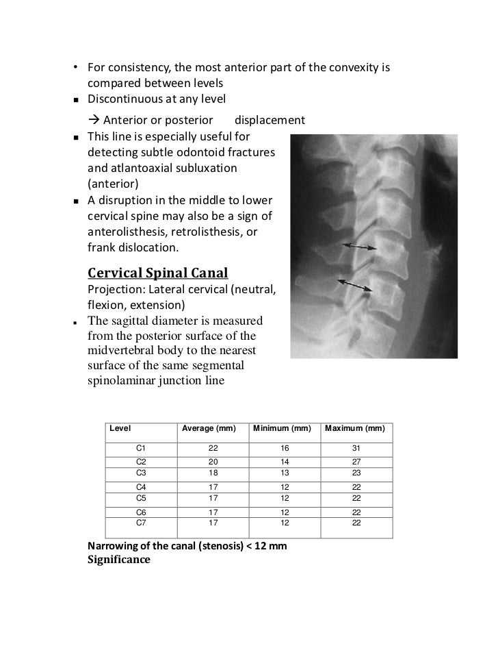 5-6 mm of retrolisthesis Retrolisthesis is a relatively rare degenerative spinal disc condition that originates in the lower area of the spine the condition may cause lower back and lower extremity pain in some cases a variety of pelvic exercises may help relieve and reduce symptoms of retrolisthesis, according to chiropractic research review.
