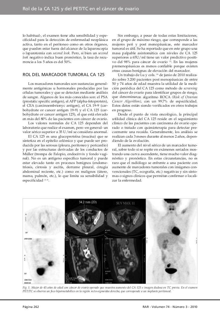 Rol del ca 125 y del pet en el cáncer de ovario Slide 2