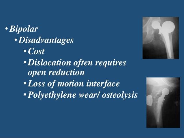 Role of hemiarthroplasty -30th - 51.1KB
