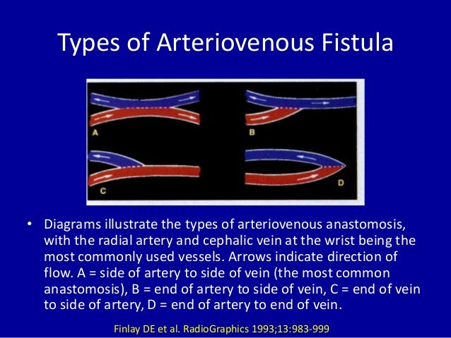 role of medical imaging in management of arteriovenous