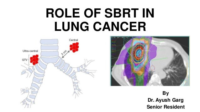 ROLE OF SBRT IN LUNG CANCER By Dr. Ayush Garg Senior Resident