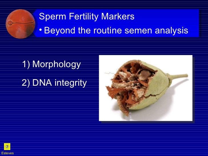 1) Morphology 2) DNA integrity Esteves <ul><li>Sperm Fertility Markers </li></ul><ul><ul><li>Beyond the routine semen anal...