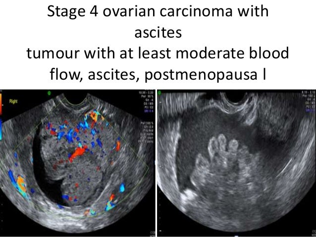 Role of ultrasound in ovarian lesions