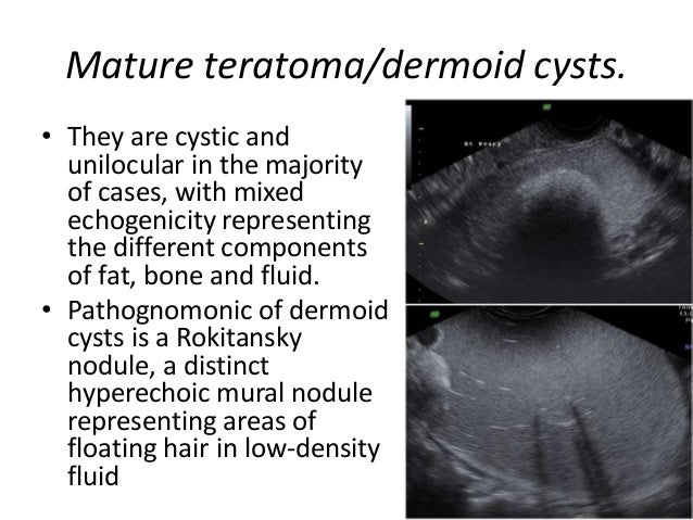 Role of ultrasound in ovarian lesions for Cystic lesion with mural nodule