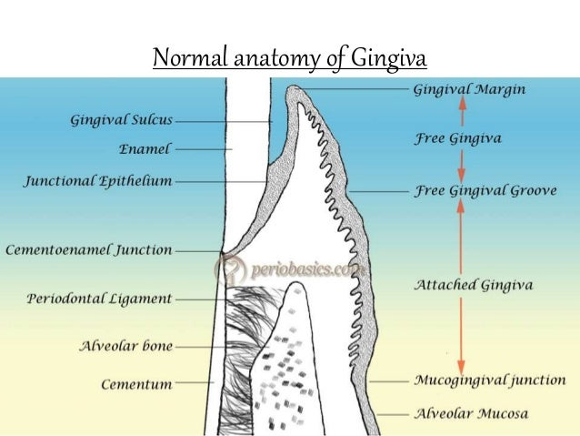 clinical features of gingivitis